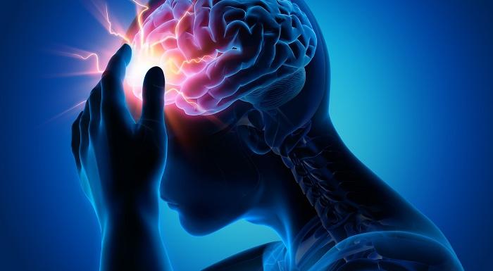 日常生活に支障が出やすい片頭痛|新しい予防薬が登場!